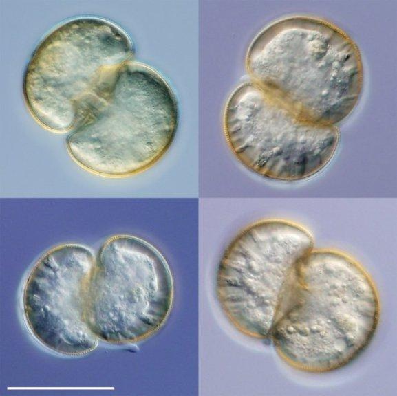 amoebas dividing